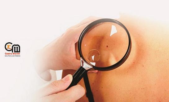 Rastreio-dermatologico-castro-marim