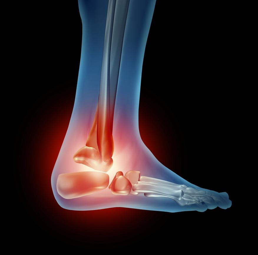cirurgia ortopédica