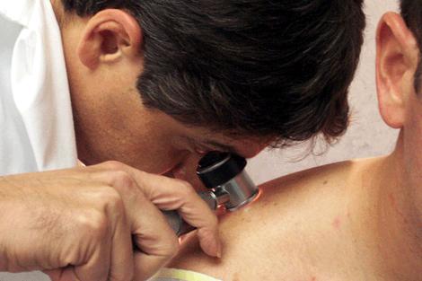 Rastreio Dermatologico